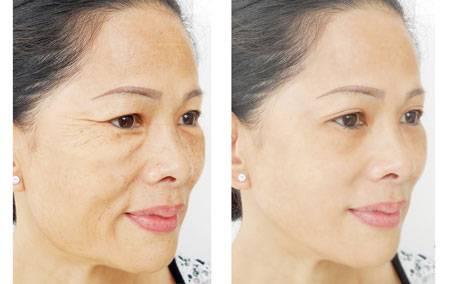 Đánh bay nỗi lo về da bằng công nghê Hàn Quốc Mesotherapy Ashley
