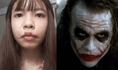 Cô gái sở hữu gương mặt như Joker sau tai nạn thang máy cầu cứu