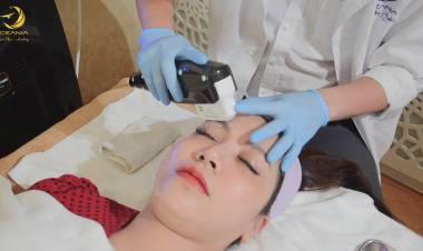 Công nghệ nâng cơ mặt trẻ hóa da Hifu có tốt không?