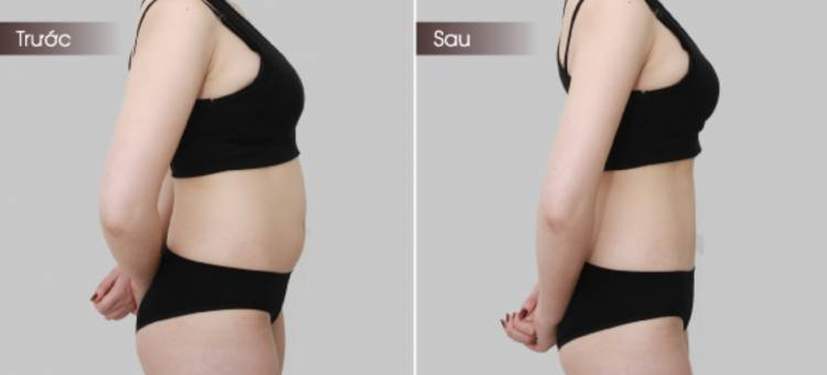 LipoMax - Giảm béo không phẫu thuật hiệu quả nhất